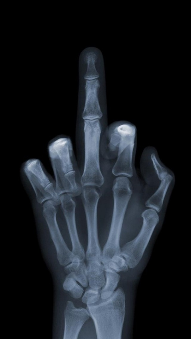 Funny X-ray Bone Finger